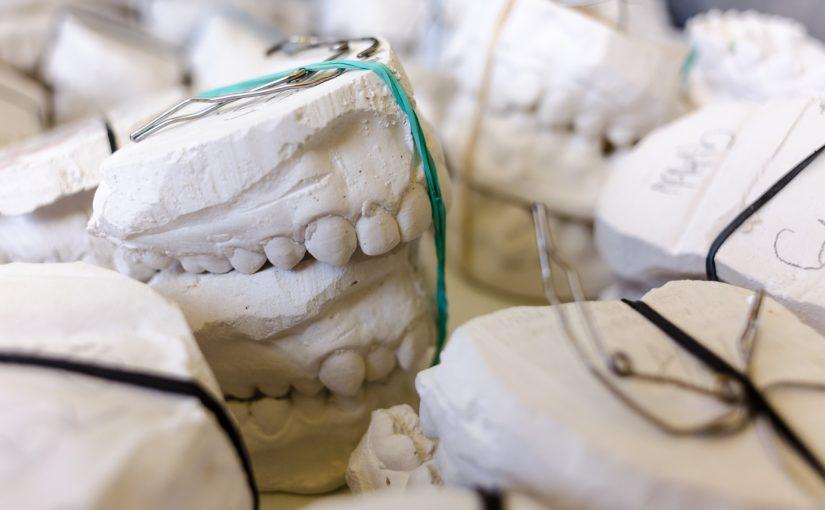 Złe podejście odżywiania się to większe ubytki w jamie ustnej natomiast także ich zgubę